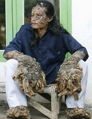 Now that is one bad skin condition!